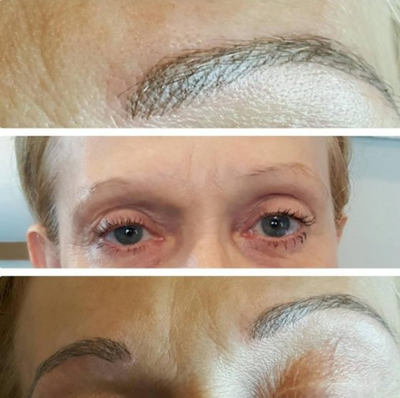 Microblading Before and After Pictures Dallas 2